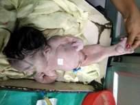 मत्स्य सदृश्य बाळ ठरले अल्पायुषी