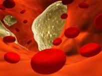 कोलेस्ट्रॉल वाढलं असेल तर शरीर देतं हे ५ संकेत, दुर्लक्ष पडू शकतं महागात!