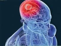 डोक्यातून काढला सर्वांत मोठा ट्युमर, वजन १.८ किलोग्रॅम; नायर रुग्णालयात शस्त्रक्रिया