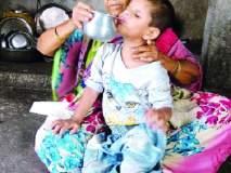 अंध सम्राटच्या जीवनात गरिबीचाही अंधार -बाळाला मदतीची गरज -औषधोपचार मिळाले तरच दिसणार