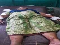 कल्याणमध्ये भटक्या कुत्र्यांच्या हल्ल्यातवृद्ध महिला जखमी
