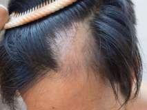 केसांच्या सर्व समस्यांवर एकमेव उपाय; एकदा वापरून पाहाच!