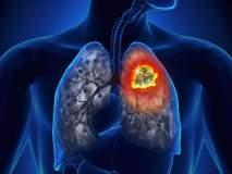 'या' नव्या रक्त चाचणीमुळे टीबीचं निदान करणं अधिक सोपं - रिसर्च