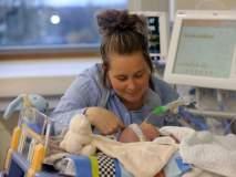 ह्रदय शस्त्रक्रिया झालेल्या दोन महिन्याच्या बाळाने दिलेल्या स्माईलचं जगाने केलं कौतुक