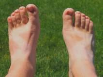 उन्हामुळे पाय काळसर झालेत ? नक्की करा हे घरगुती उपाय