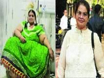 पालघरच्या महिलेने घटवले तब्बल २१४ किलो वजन! चार वर्षे सुरू होते उपचार