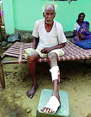 Three injured in Randukar attack | रानडुकराच्या हल्ल्यात तिघे जखमी