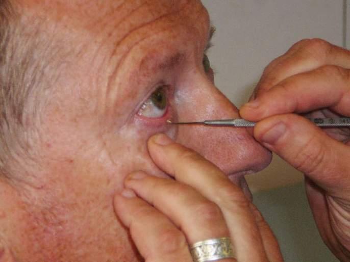 VIDEO: In India people use safety pin to clean eyes | VIDEO : भारतातल्या 'या' ठिकाणीडोळे स्वच्छ करण्यासाठी वापरला जातो सेफ्टी पिन