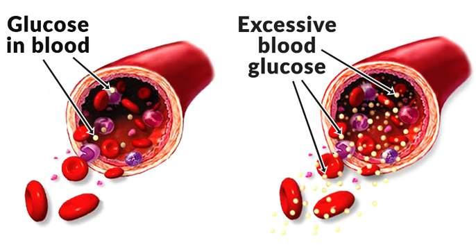 HEALTH: How will blood sugar levels be identified? | HEALTH : रक्तातील साखरेची पातळी कशी ओळखाल?