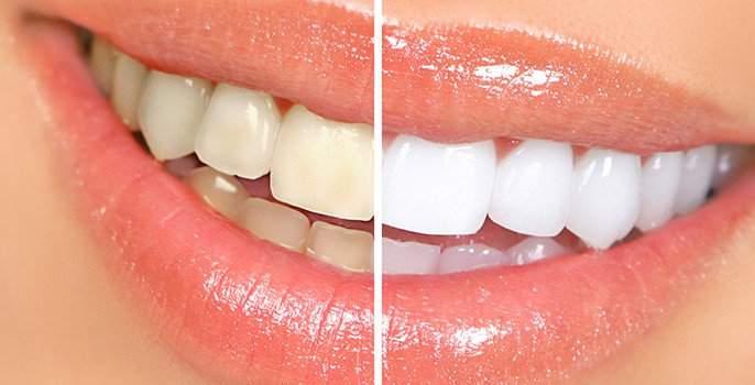 BEAUTY: Domestic solution is yellow veneer! | BEAUTY : घरगुती उपायांनी घालवा दाताचा पिवळेपणा !