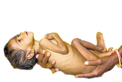 In ten months, 162 children of Beed district were malnourished | दहा महिन्यांत बीड जिल्ह्यातील १६२ बालके कुपोषणमुक्त