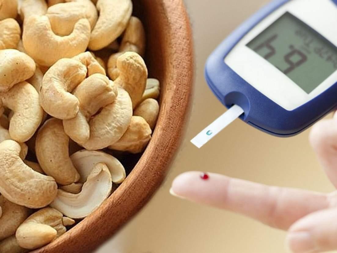 डायबिटीस असणाऱ्या व्यक्तींनी काजू खाणं फायदेशीर ठरतं का? - Marathi News | Benefits of eating cashew nuts in diabetes can a diabetic person eat cashew nuts | Latest food News at Lokmat.com