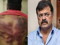 'मी बराच वेळ त्याच्याकडे दुर्लक्ष केलं'; मारहाण प्रकरणावर आव्हाडांनी सोडलं मौन - Marathi News | Minister Jitendra Awhad told that this engineer had been posting for the last 3 years against me mac | Latest mumbai News at Lokmat.com