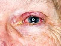 Mucormycosis: चिंताजनक! राज्यात कोरोनानंतर म्युकरमायकोसिसचं थैमान, ५२ जणांचा मृत्यू; अनेकांनी डोळे गमावले - Marathi News   52 victims of Mucormycosis in Maharashtra Lost eyes too   Latest maharashtra News at Lokmat.com