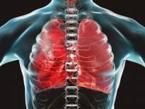 Coronavirus : कधी करावा CT स्कॅन? बघा कोरोना फुप्फुसावर कसा करतो प्रभाव! - Marathi News | Coronavirus : Covid-19 lungs infection oxygen doctor important advice prevention x rays CT scans | Latest health Photos at Lokmat.com