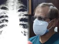 Coronavirus : कोरोना स्ट्रेनचं भयावह रूप! २४ तासात महिलेचे फुप्फुसं खराब, एक्स-रे पाहून डॉक्टर 'कोमात' - Marathi News | Coronavirus new strain both lungs of woman spoiled in Kota Rajasthan | Latest health Photos at Lokmat.com