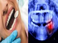गोड, थंड खाल्ल्यावर तुम्हालाही दातात वेदना होतात? मग 'या' सोप्या उपायांनी कायमचा मिळेल आराम - Marathi News | when you eat sweets my teeth hurting reasons, know oral health care tips | Latest health News at Lokmat.com