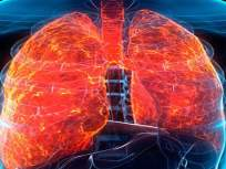 चिंताजनक! भारतासह अमेरिका, ब्रिटेनमधील कोरोना रुग्णांना उद्भवते फुफ्फुसांची गंभीर समस्या - Marathi News | lung firbrosis is major medical condition in corona patients at science | Latest health Photos at Lokmat.com