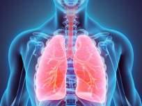 'या' ६ कारणांमुळे कोणालाही होऊ शकतो फुफ्फुसांचा कॅन्सर; वाचा लक्षणं आणि बचावाचे उपाय - Marathi News | lung cancer 6 big reasons for disease know symptoms causes and prevention | Latest health News at Lokmat.com
