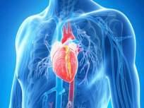 हार्ट ब्लॉकेजची लक्षणे आणि कारणे, जाणून घ्या काही नैसर्गिक उपाय.. - Marathi News | Causes and symptoms of heart blockage api | Latest health News at Lokmat.com