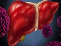 सावधान! दारू न पिणाऱ्यांचंही लिवर होऊ शकतं खराब, जाणून घ्या कारण... - Marathi News   Obesity and diabetes major risk factor for non alcoholic fatty liver disease   Latest health News at Lokmat.com