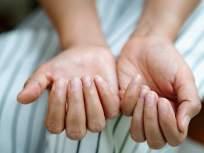 COVID symptoms: नखे आणि त्वचेवर कोरोना कशाप्रकारे पसरवतोय इन्फेक्शन, वेळीच घ्या काळजी... - Marathi News | Most covid positive patients experience skin infection in second wave | Latest health News at Lokmat.com