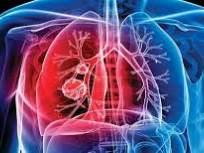 coronavirus: क्षयाच्या गंभीर रुग्णांना कोरोनाचा धोका कमी , तज्ज्ञांचे मत - Marathi News | coronavirus: Reduces the risk of coronavirus in severe tuberculosis patients, experts say | Latest maharashtra News at Lokmat.com