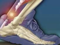 हाडांसाठी घातक ठरतोय वजन कमी करण्याचा 'हा' उपाय; संशोधनातून माहिती समोर - Marathi News | Health Tips in Marathi: Weight loss surgery can make you bone weaken | Latest health Photos at Lokmat.com