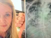 स्मोकिंग करणाऱ्यांपेक्षाही जास्त खराब होऊ शकतात कोरोना रुग्णांची फुफ्फुसं; डॉक्टरांचा दावा - Marathi News | This doctor says that corona patients lungs can be worse than smokers lungs | Latest health Photos at Lokmat.com