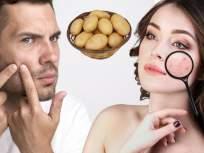 लॉकडाऊनमध्ये पार्लरला सुट्टी? घरच्याघरी बटाटा वापरून मिळवा सुरकुत्या, टॅनिंगपासून सुटका - Marathi News | Row Potato benefits of skin potato can remove dark circles myb | Latest beauty News at Lokmat.com