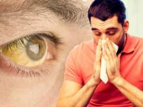 पावसाळयात थंडी वाजून ताप येणं, 'या' गंभीर आजाराचं असू शकतं लक्षण;आधीच जाणून घ्या उपाय - Marathi News | Jaundice disease prevention symptoms and cure | Latest health News at Lokmat.com