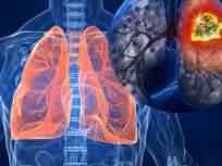 'या' ४ स्थितीत फुफ्फुसांचं होतं मोठं नुकसान; जाणून घ्या कोरोनाकाळात निरोगी राहण्याचे उपाय - Marathi News | Health tips : How to prevent from lungs disease | Latest health News at Lokmat.com
