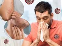 समोर आलं कोविड19 चं नवं लक्षणं; संसर्गापासून बचावासाठी वेळीच माहीत करून घ्या - Marathi News | CoronaVirus News : New symptoms of Covid 19; Know in time to prevent infection | Latest health News at Lokmat.com