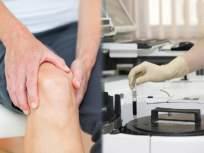 अरे व्वा! सांधेदुखीच्या गोळ्याचे साईड इफेक्ट टाळण्यासाठी भारतीय तज्ज्ञांनी शोधलं नवीन तंत्र - Marathi News   Scientists find new way to reduce the side effects of arthritis medicine sulfapyridine uses   Latest health News at Lokmat.com