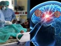 काळजी वाढली! फक्त फुफ्फुसंच नाही तर नाकावाटे मेंदूपर्यंत पोहचतोय करोनाचा व्हायरस - Marathi News | Coronavirus updates corona virus may enter brain through nose study | Latest health News at Lokmat.com