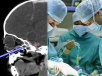 १६ महिन्यांच्या मुलीच्या नाकातून काढला ब्रेन ट्यूमर; जगातील सगळ्यात कमी वयाच्या चिमुकलीचे ऑपरेशन - Marathi News | A 16 month girl create world record for operating brain tumor through nose | Latest jarahatke News at Lokmat.com