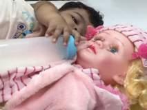 चिमुकलीला लागला बाहुलीचा लळा; उपचारासाठी डॉक्टरांनी केली 'अशी ही बनवाबनवी'