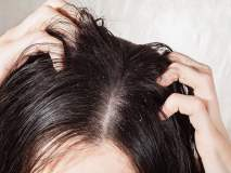 केसांमधील कोंडा दूर करण्यासाठी अगदी सोप्या घरगुती टिप्स