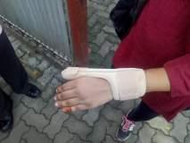 टीसीने ट्रॅकमनच्या मुलीचा हात पिरगळला; गुन्हा दाखल