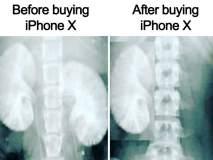 किडनी आणि आयफोनचा 'खोल'वर संबंध, कसा तो केवळ आयफोनवाल्यांनाच कळेल!