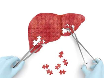 For the first time in Nagpur, liver transplant is successful   नागपुरात प्रथमच यकृत प्रत्यारोपण यशस्वी