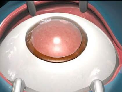 1,165 cataract surgeries in five days in the state! | पाच दिवसांत राज्यात १,१६५ मोतीबिंदू शस्रक्रिया!