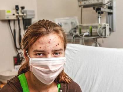 Five types of dermatitis appear in those who have recovered from the corona | कोरोनातून बरे झालेल्यांमध्ये दिसताहेत पाच प्रकारचे त्वचाविकार