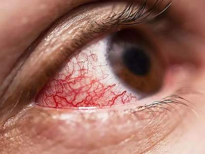 One and a half thousand patients with Mucormycosis infarction in the state, if treated in time, the disease can be cured | Mucormycosis: म्युकरमायकोसिसचे राज्यात दीड हजार रुग्ण, वेळीच उपाय केले तर आजार बरा होऊ शकतो