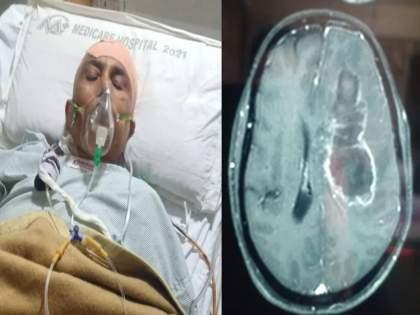 largest white fungus infection found in tumor after brain operation of woman in indore   White Fungus: महिलेच्या डोक्यातून काढण्यात आला जगातील सर्वात मोठा व्हाईट फंगस; आकार पाहून डॉक्टरदेखील चक्रावले