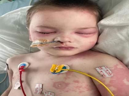 CoronaVirus News after black fungus corona showed new symptoms of death in children   CoronaVirus News: ब्लॅक फंगसनंतर कोरोनामुळे नवं संकट; शरीराला सूज, हृदयक्रिया बंद पडण्याचा धोका