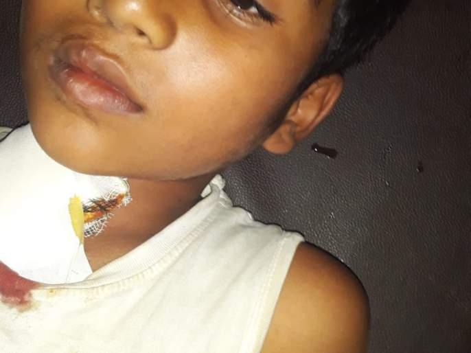 Baby rescued from attack | बिबट्याच्या हल्ल्यातून बालक बचावले