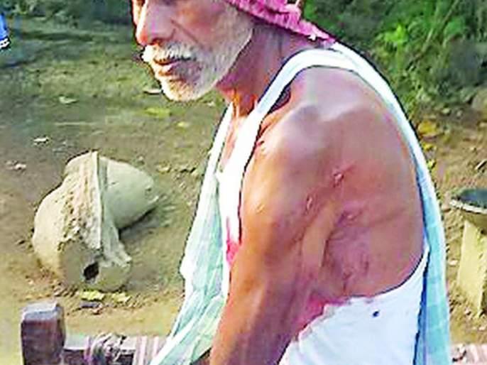 Injured in raid attack | रानडुकराच्या हल्ल्यात इसम जखमी