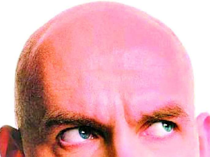 Citizens prefer baldness during lockdown | लॉकडाऊनच्या काळात नागरिकांची टक्कलला पसंती