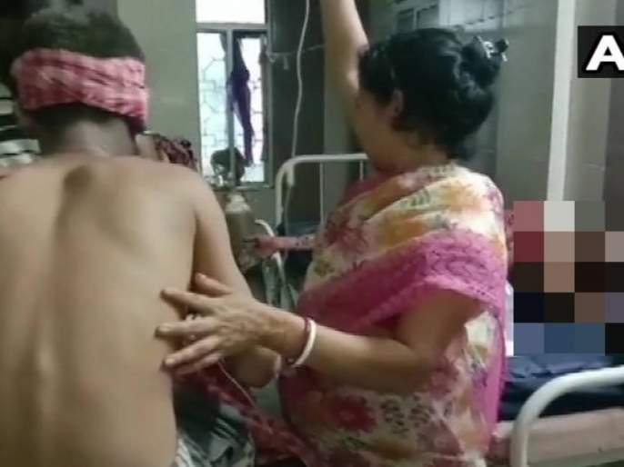 bjp workers injured in a crude bomb blast in Rampur village of South 24 Parganas district | पश्चिम बंगालमध्ये भाजप कार्यकर्त्यांवर बॉम्बहल्ला; ६ जण जखमी